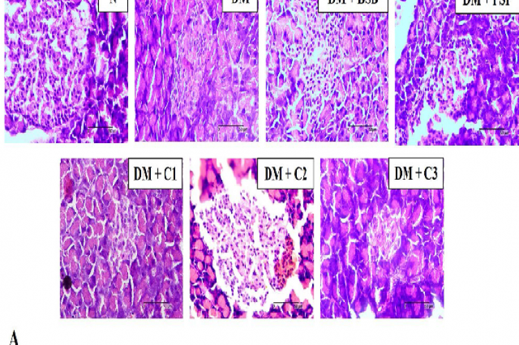 Treatments with BSB, PSP and the combination of both were able to decrease necrosis in T2DM-model rats