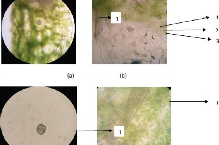 (a) 1. Epidermis, (b) 1. Stomata, 2. Chlorophyll, 3. Cell closing, (c) 1. Ca-Oxalate crystal in rosette, (d) 1. Thickening of the carrier beam spiral shape