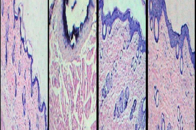 Figure 4 corrected image