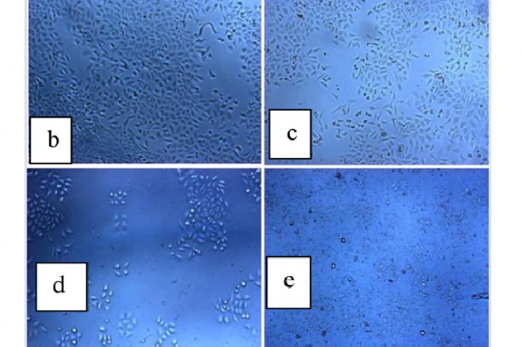 Morphological profile of the T47D cells after treated with ethanol extract of ginger 0.1 μg/mL (b), 1.0 μg/mL (c), 10 μg/mL (d) and 100 μg/mL (e) compared to control (a) for 24 h. (100 x enlargement)