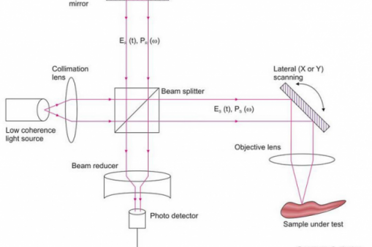Optical coherence tomography uses light to generate highresolution Images of tissues