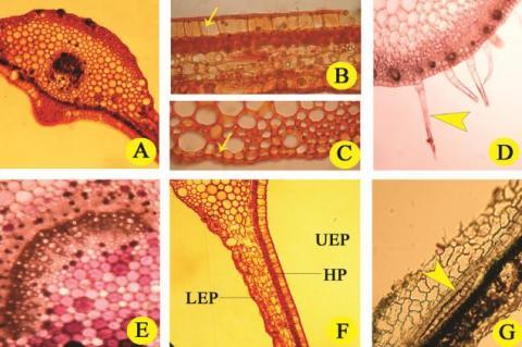 Leaf anatomy of P. heyneana leaf