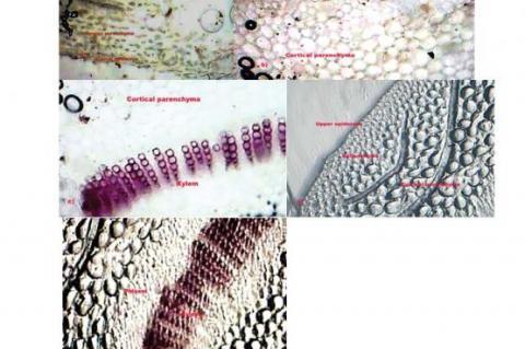 Microscopical characteristics of S. indiucs leaf
