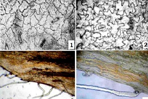 Micromorphological structure of the leaf of the Hedysarum caucasicum adaxial epidermis, 2—abaxial epidermis, 3-4 – trichomes