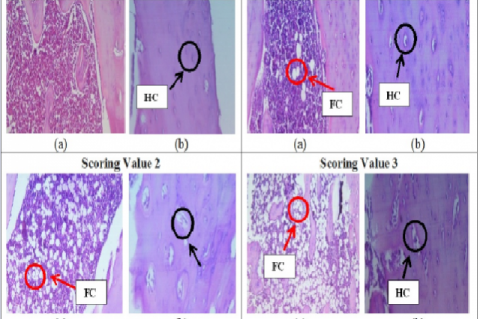 Histology of tibia bone after stained by H&E, magnification 400×. (a) bone marrow; (b) bone structure. FC, fatty bone marrow; HC, haversion canal