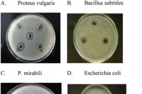 Antibacterial activity against different bacterial strains