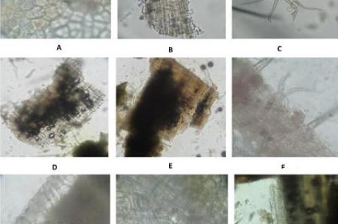 Macroscopic and Microscopic of S. macrophylla leaves powder