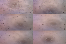 HCT116 cells observation using Dyno Eye microscope. A. Control 1, B. Control 2, C.