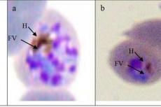 Morphology of P. falciparum food vacuole
